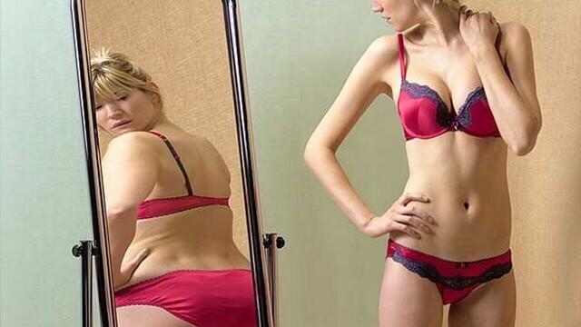 anorexia-nervosa. Pedro Martins Psicoterapeuta - Psicoterapia